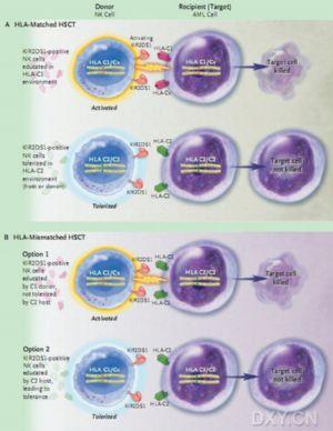急性髓性白血病复发的控制