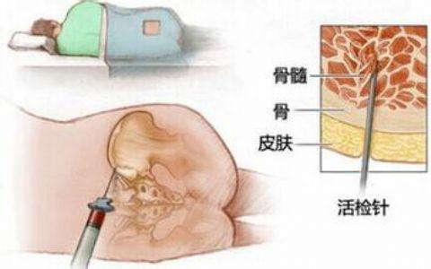 骨髓穿刺检查可以诊断白血病?