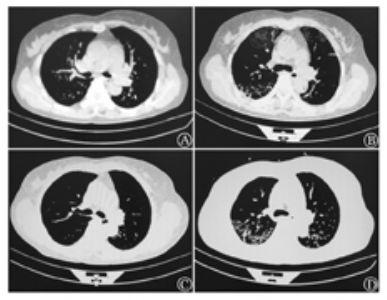 Ph染色体阳性急性淋巴细胞白血病伊马替尼治疗致间质性肺炎一例