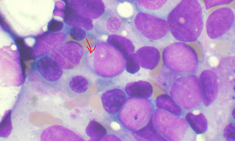 myeloidleuke.png